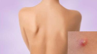 Sırt ve Göğüste Çıkan Sivilcelere Çözüm