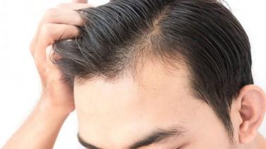 Saç Ekim Yöntemleri İle Kelliğe Son