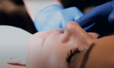 Dudak Dolgusu İle Hacimli Dudaklar : Doktor Yaprak Konakçı Anlatıyor!