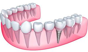 izmir implant